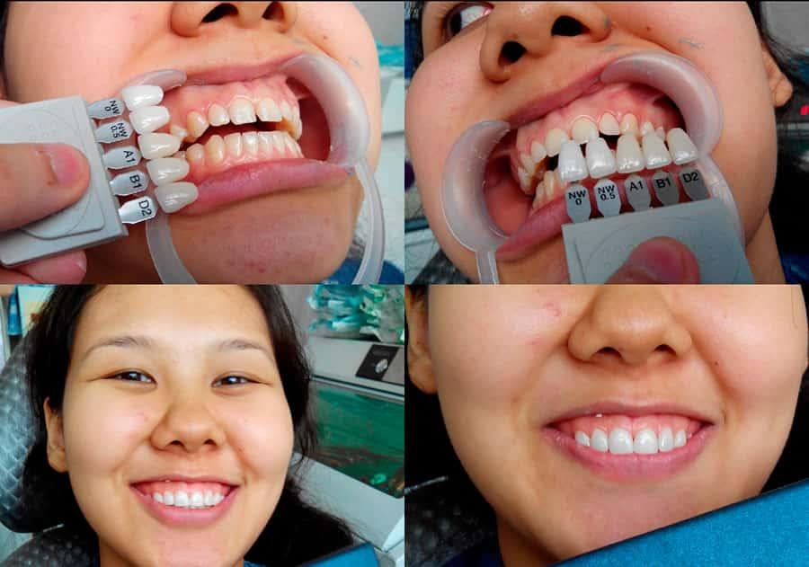 Как сделать зубную коронку 21